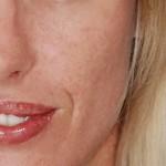 40代から毛穴が目立つ!毛穴の開きの原因と対策は?